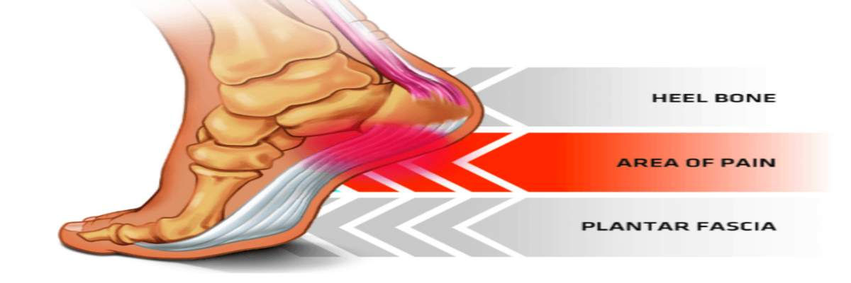 Plantar Fasciitis Pf With Dr Paul Sommer And Os1st Fun Runwalk